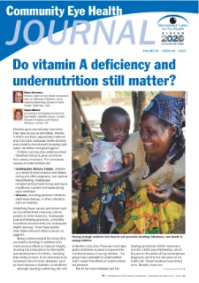 2013_Do vitamin A deficiency and undernutrition still matter.pdf